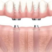 impisnti-dentali-tianio-nobel-biocare-roma